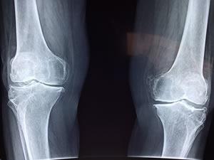 Tenho pinos nos joelhos e artrose, posso fazer caminhadas?