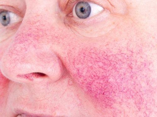 Doenças parecidas acne