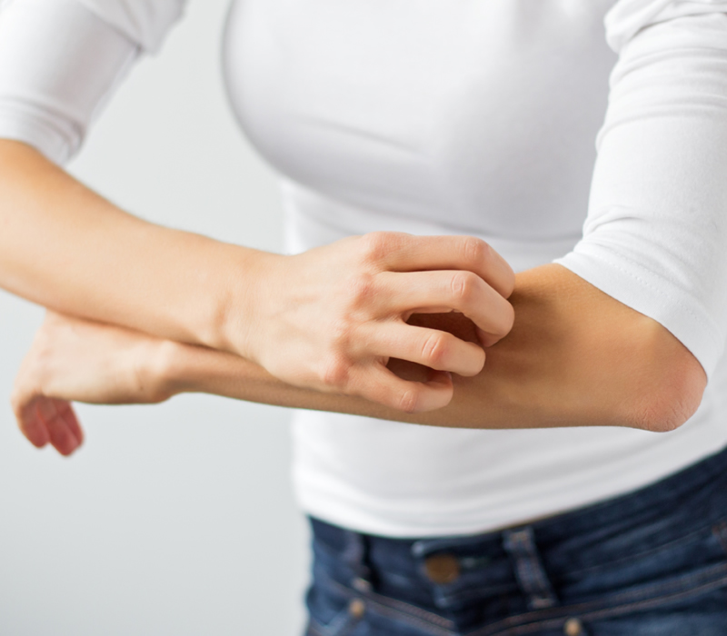 Entenda o que é e como evitar a irritação na pele ligada à alergia ao glúten